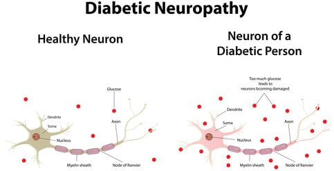 Diabetic Neuropathy symptoms and the difference between the neurons