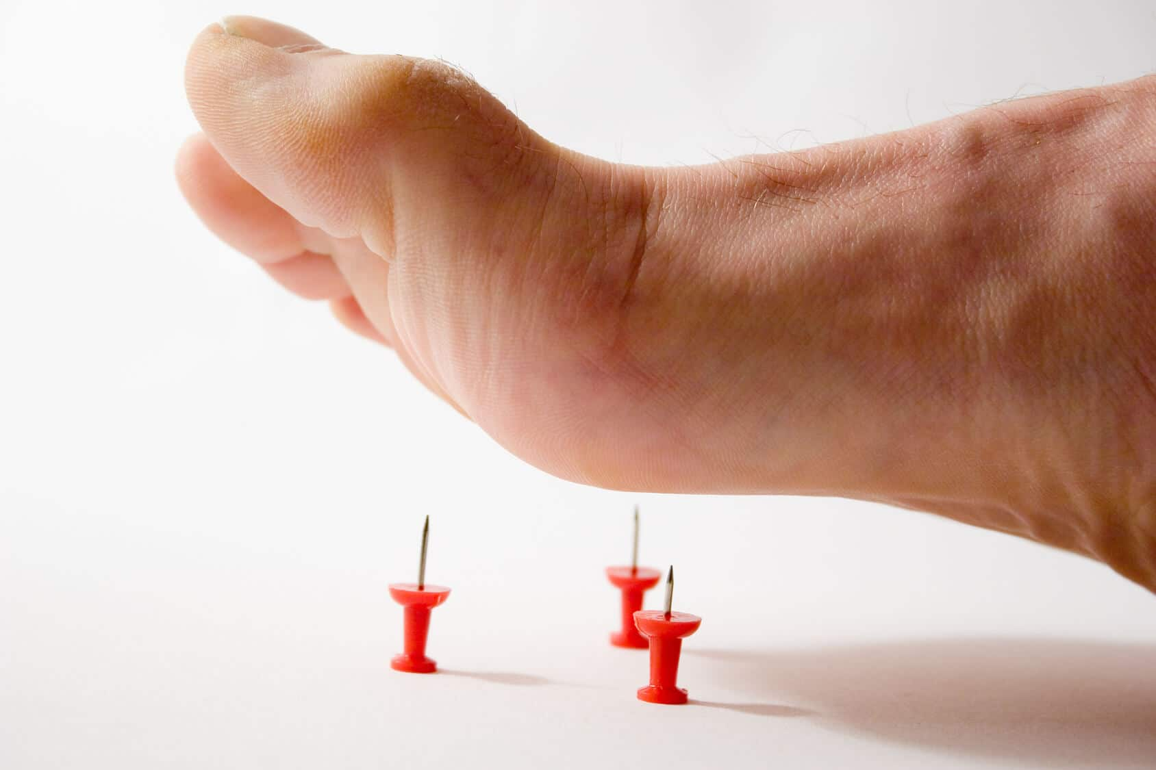 How To Treat Neuropathy In Feet Naturally