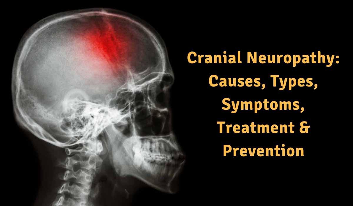 Cranial-Neuropathy